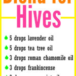 DIY Essential Oil Blend for Hives