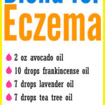 DIY Essential Oil Blend for Eczema