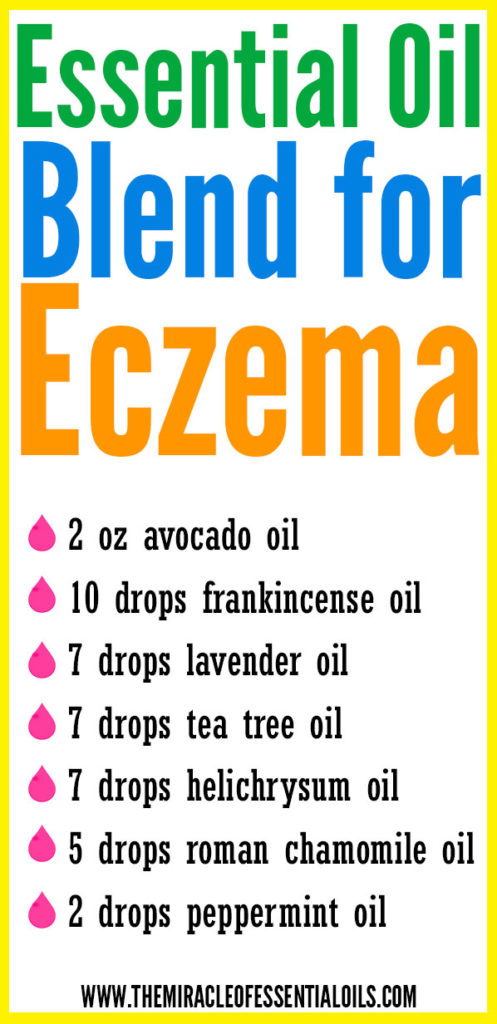 Find soothing relief fast using this DIY Essential Oil Blend for Eczema!