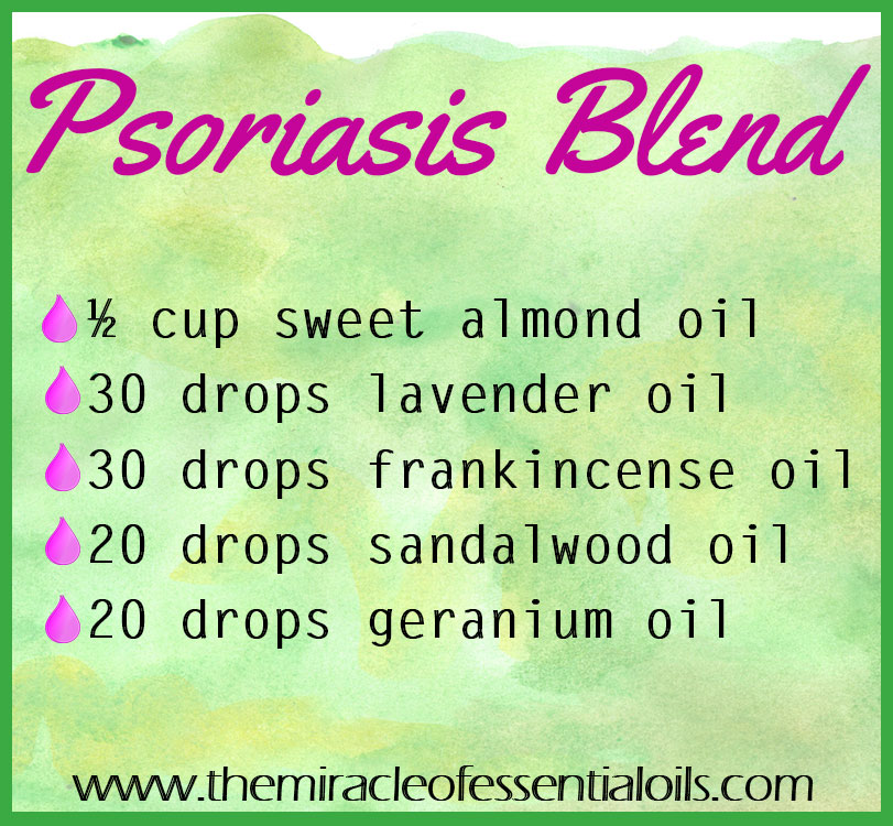 Find promising relief with this DIY essential oil blend for psoriasis.