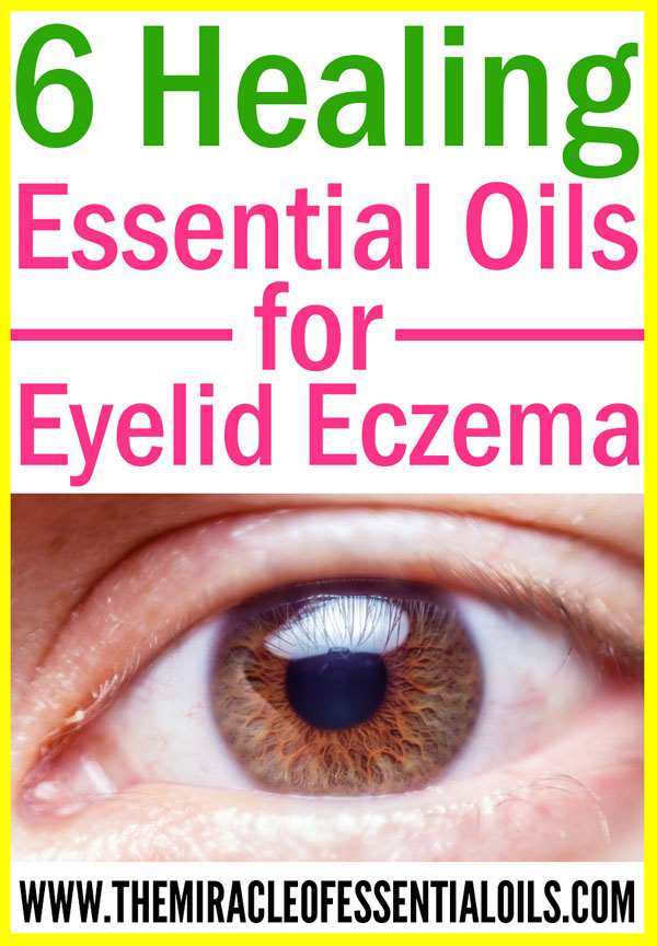 6 Essential Oils for Eczema on Eyelids (plus Healing Cream Recipe)