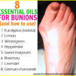 8 Best Essential Oils for Bunions & How to Use