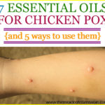 Top 7 Essential Oils for Chicken Pox & 5 Ways to Use them