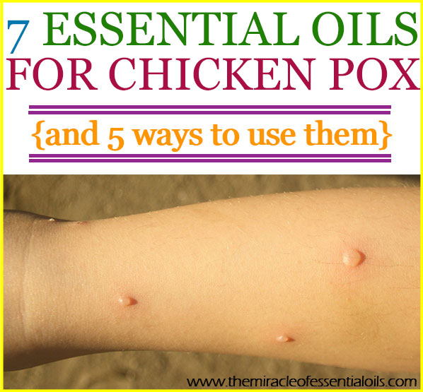 Top 7 Essential Oils For Chicken Pox 5 Ways To Use Them The