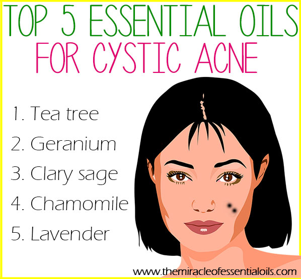 Top 5 Essential Oils For Cystic Acne Amp How To Use The