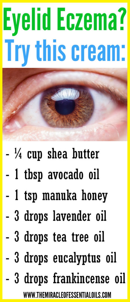 Check out these essential oils for eczema on eyelids to find natural relief fast.