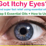 Top 5 Essential Oils for Itchy Eyes