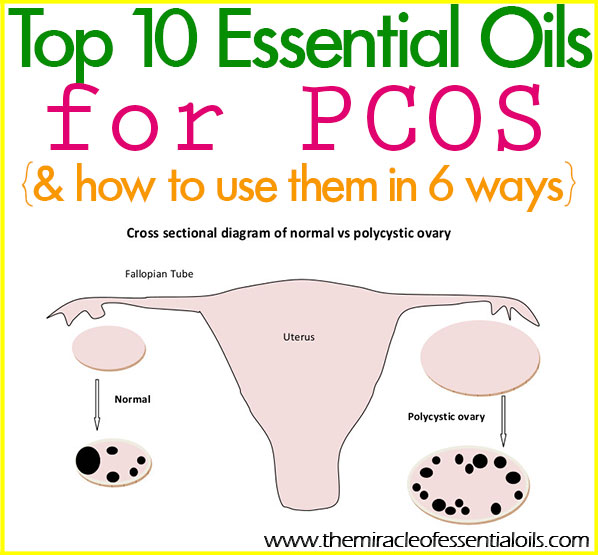 Try using essential oils for PCOS to naturally support your healing journey. Essential oils can help treat your symptoms and increase fertility!