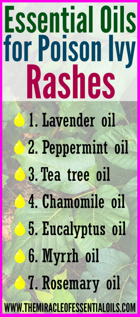 Use any of the following essential oils for poison ivy stings as a natural treatment for soothing relief!