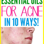 How to Use Essential Oils for Acne – 10 Ways