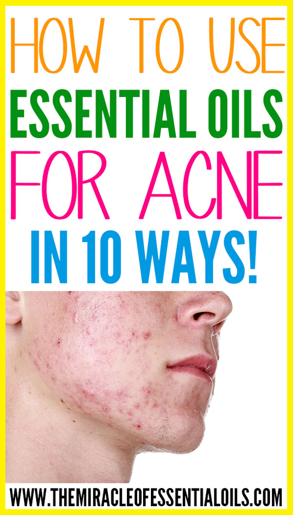 How To Use Essential Oils For Acne 10 Ways The Miracle