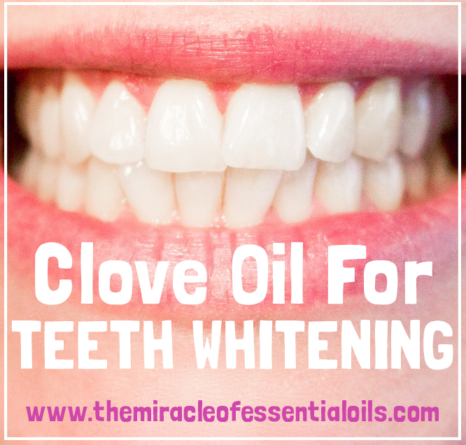 clove oil for teeth whitening