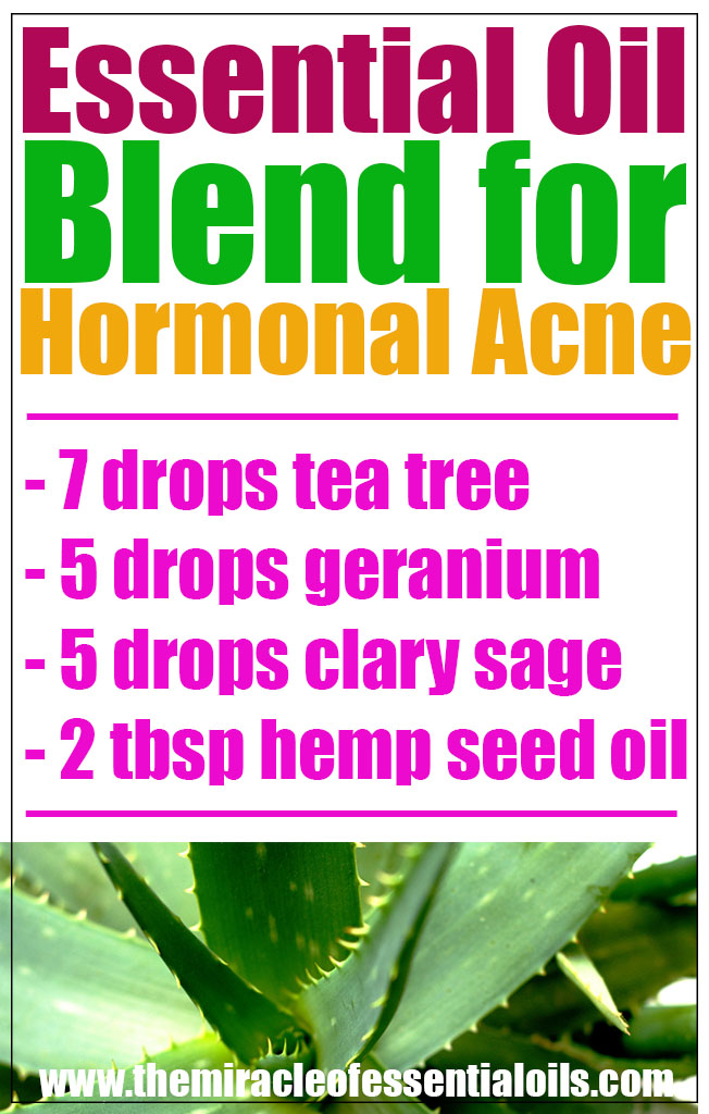 essential oil blend for hormonal acne