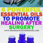 6 Best Essential Oils to Promote Healing After Surgery