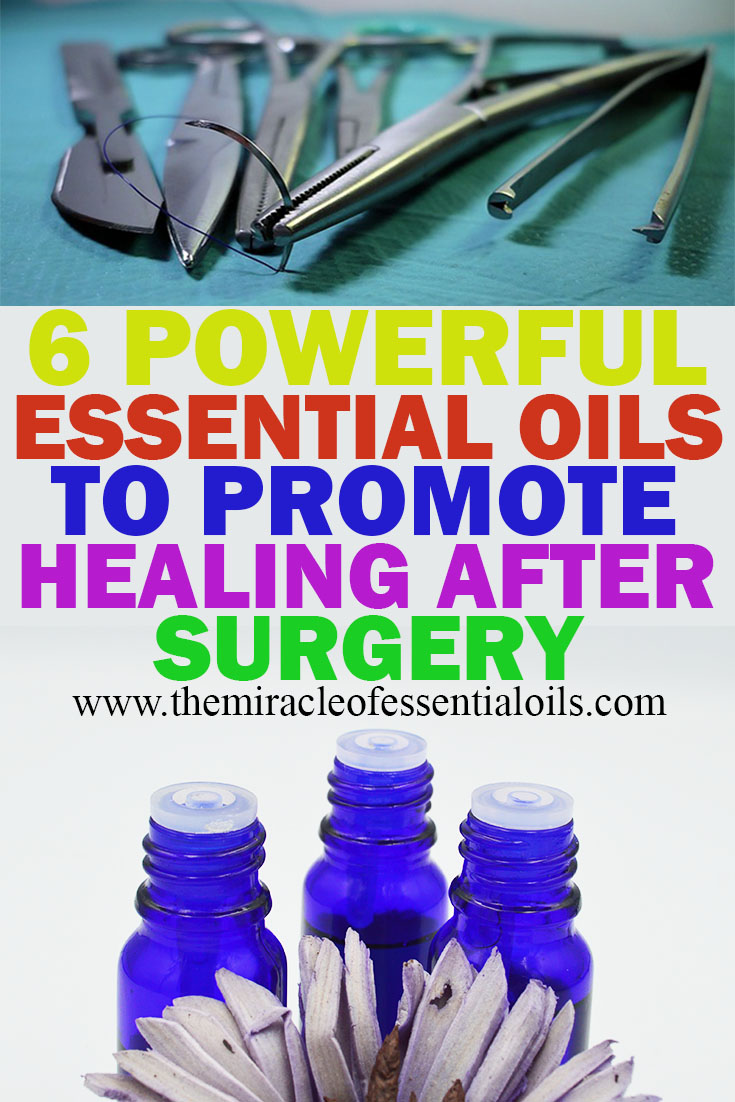 powerful essential oils to promote healing after surgery
