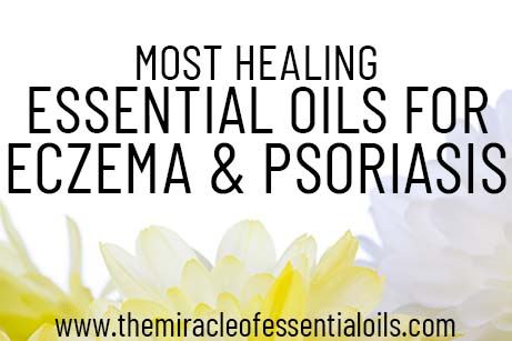 essential oils for eczema and psoriasis